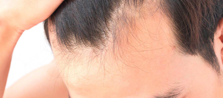 Prodotti per infoltire i capelli