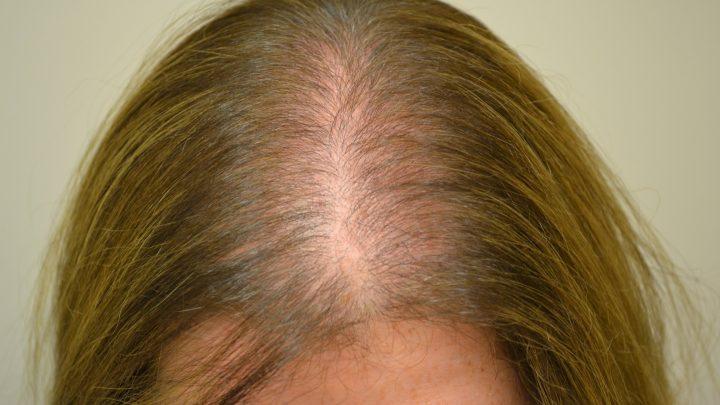 Coprire l'alopecia: alcuni rimedi efficaci