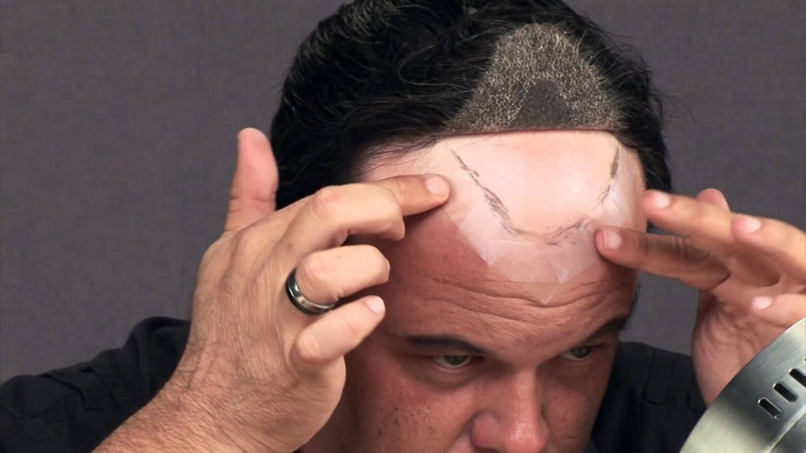Mascherare la perdita dei capelli
