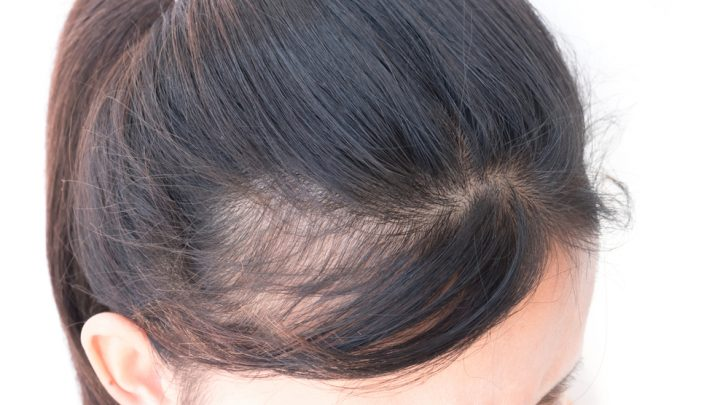 Coprire l'alopecia: quali prodotti usare