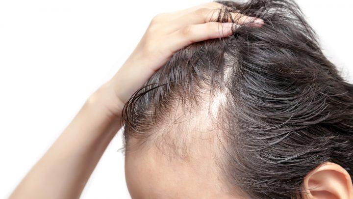Mascherare la stempiatura dei capelli