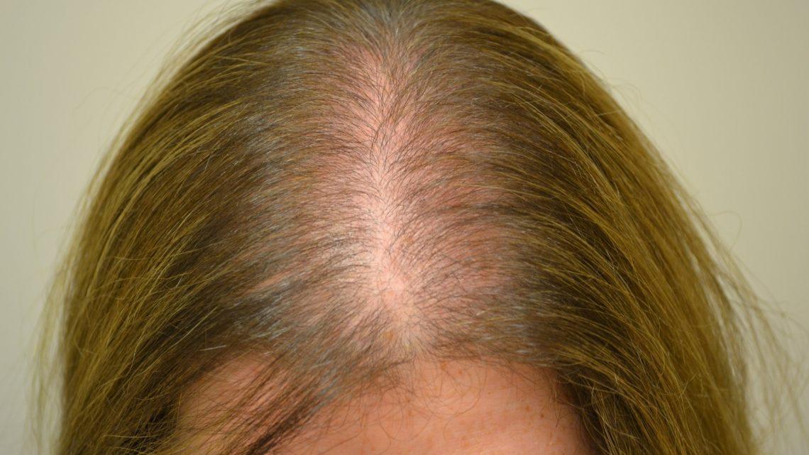 Mascherare l'alopecia femminile: 4 trucchi infallibili