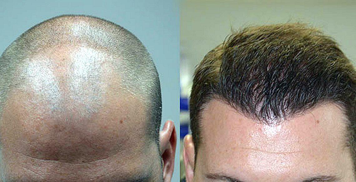 Curare la calvizie: come funziona un trapianto di capelli