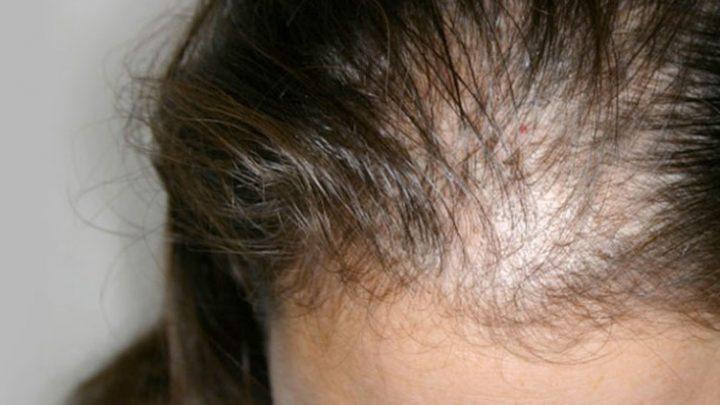 Caduta capelli donne: alopecia androgenetica femminile