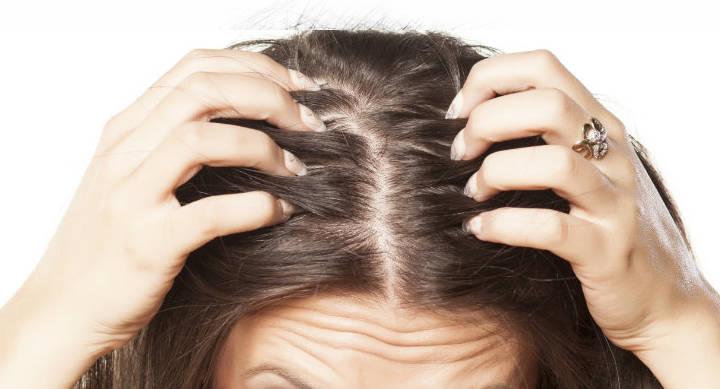 Cosmetici per  la calvizie: fondotinta per nascondere il cuoio capelluto