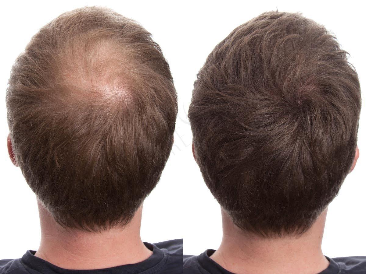 Rimedi contro la calvizie: le microfibre per capelli