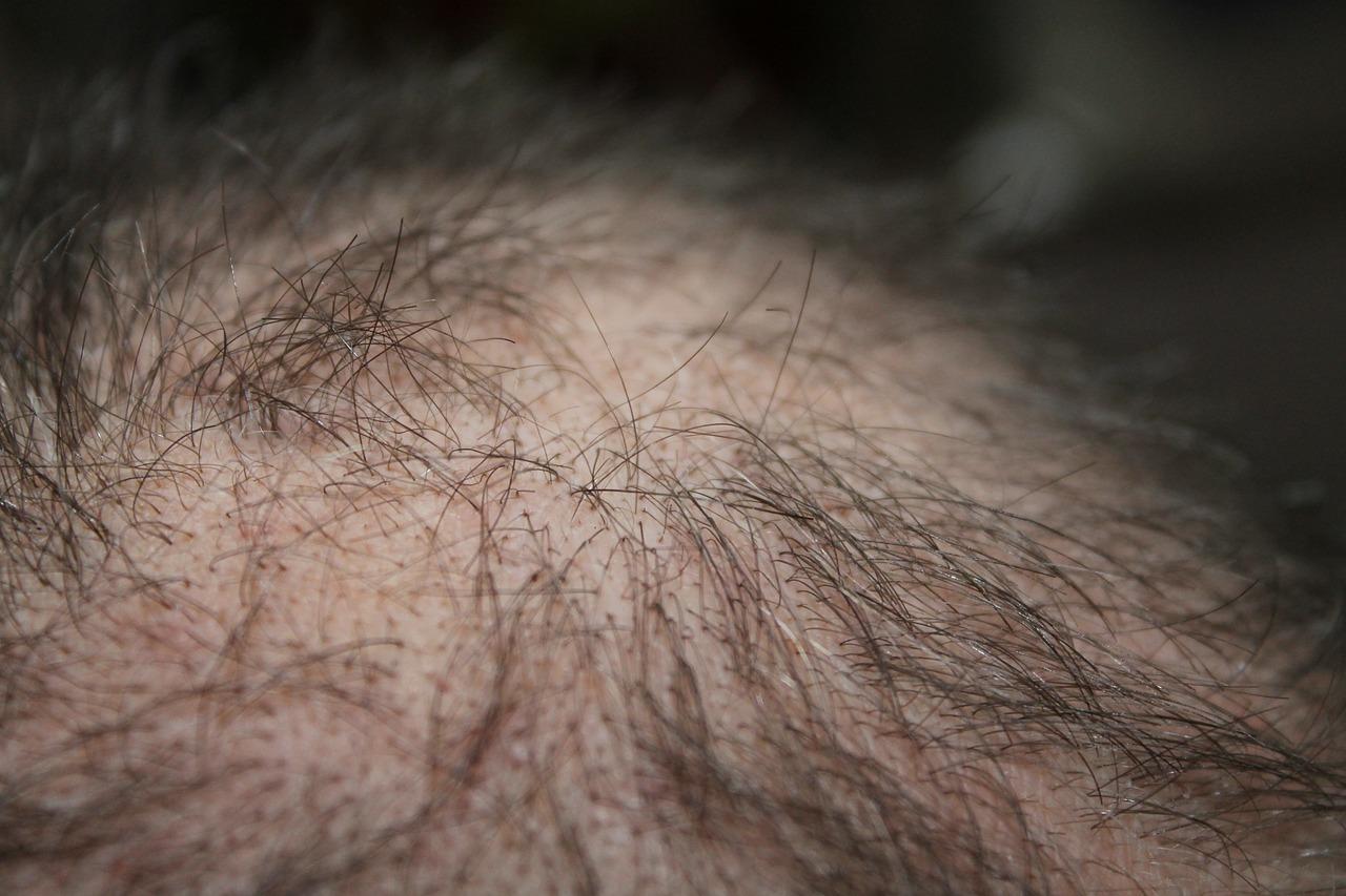 Nascondere pochi capelli: quali sono i rimedi più efficaci