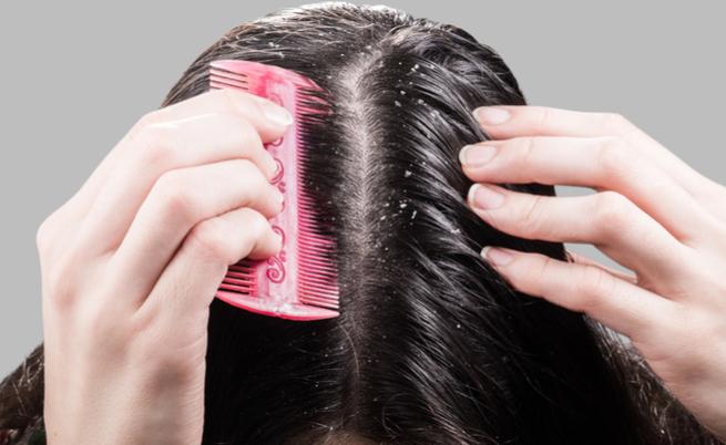 Forfora e caduta dei capelli