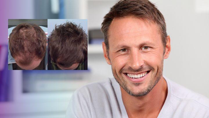 Hair fibers: cosa sono e come si usano
