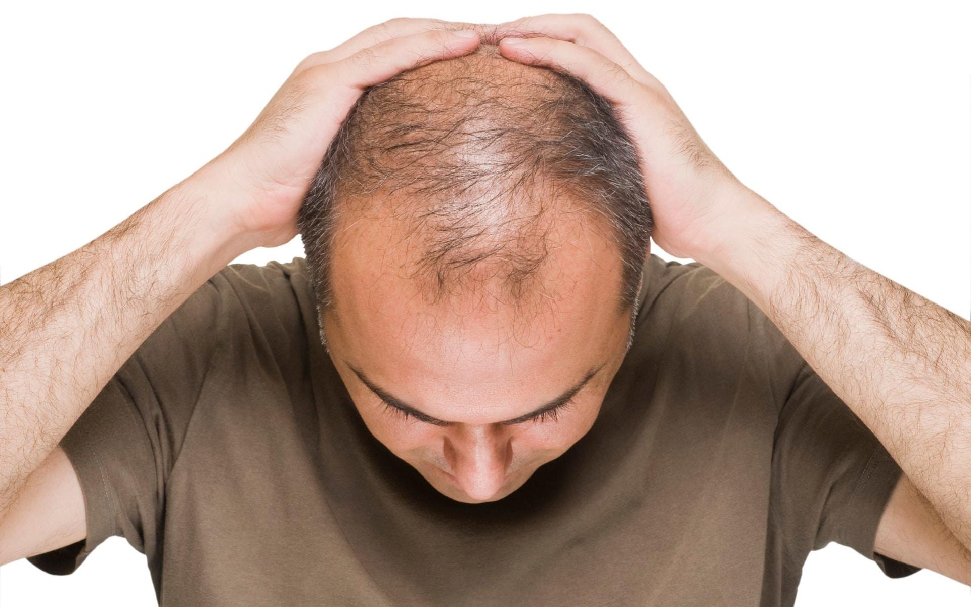 Infoltimento capelli: come ottenerlo in poche semplici mosse