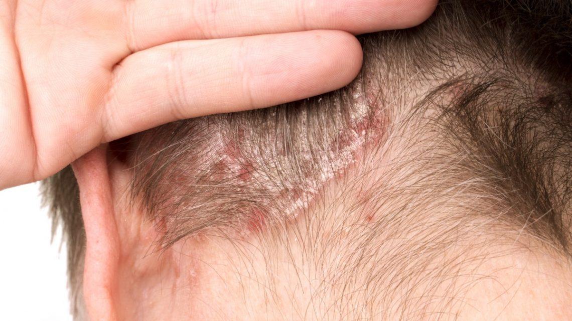 Dermatite seborroica: può provocare la caduta dei capelli?