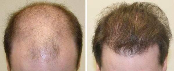Coprire la calvizie con l'impianto di capelli