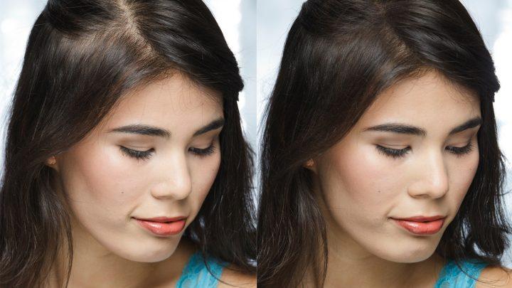 Polverina per capelli: il rimedio semplice contro la calvizie