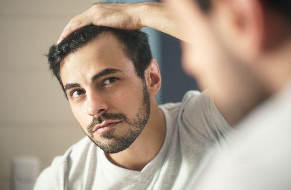 I migliori trattamenti per il diradamento dei capelli