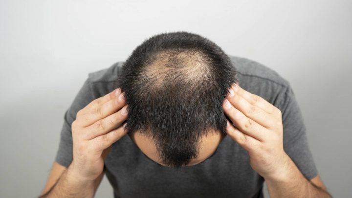 Perché i follicoli ostruiti assottigliano i capelli e cosa puoi fare al riguardo