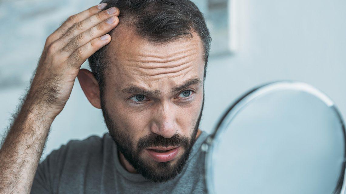 La perdita ormonale dei capelli